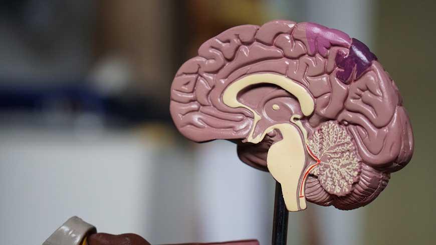 Alzheimers-Disease - Ycdscc